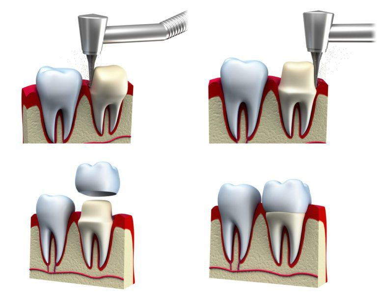 Dental crown installation process 3d illustration