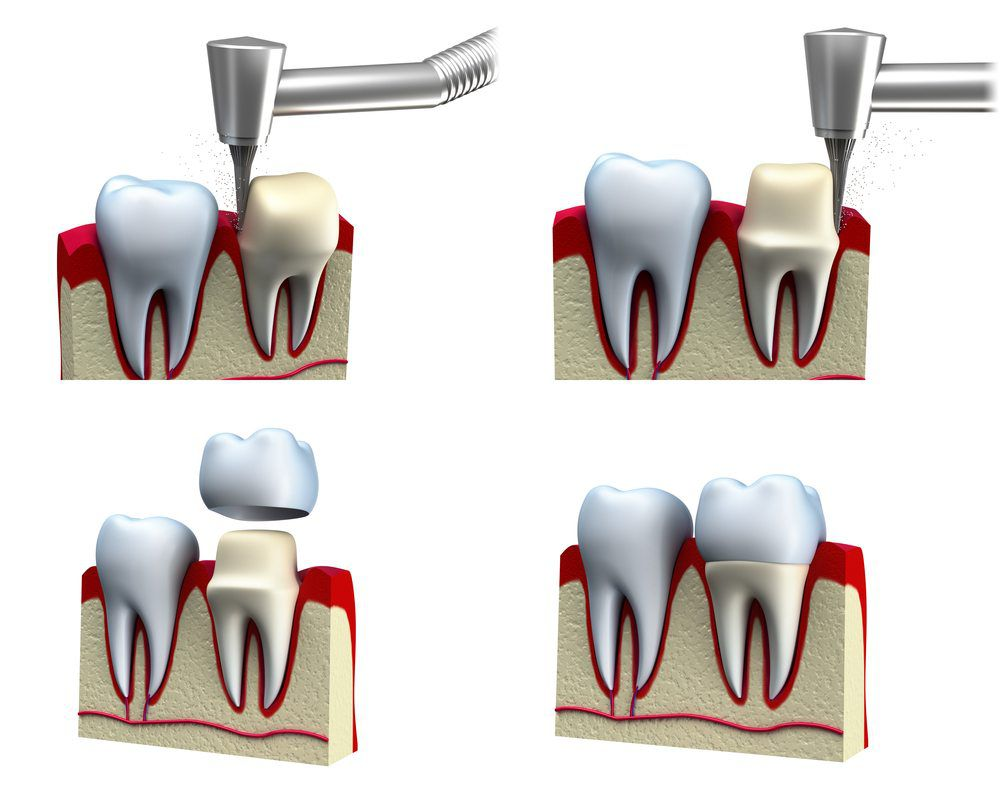Dental crown installation process 3d illustration
