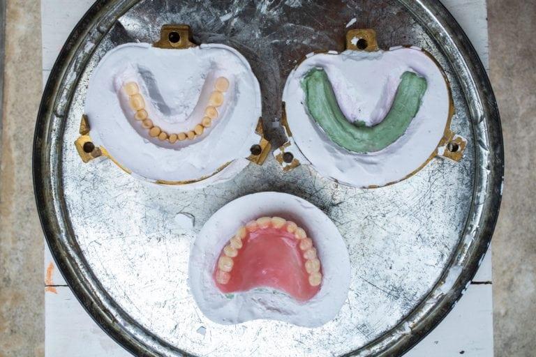 Denture process